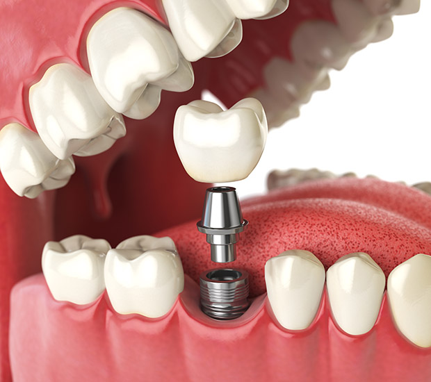 Lafayette Will I Need a Bone Graft for Dental Implants